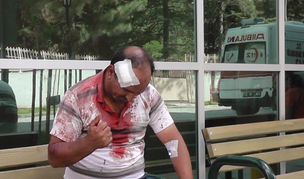 Kavgada başından bıçaklandı