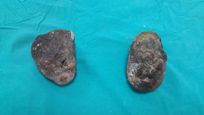 Midesinden 400 gram ağırlığında 2 taş çıkarıldı