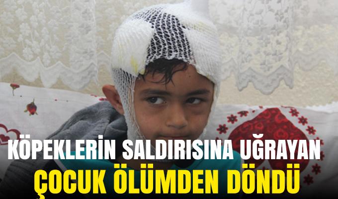 Konya'da köpeklerin saldırısına uğrayan çocuk ölümden döndü!