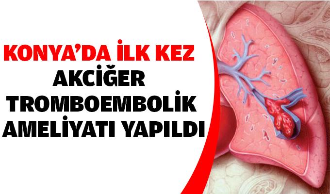 Konya'da ilk kez akciğer tromboembolik ameliyatı yapıldı